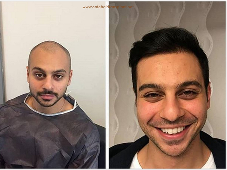 Best Hair Hair Transplant Turkey Before AfterTransplant Turkey