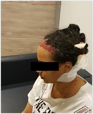 Hair transplant in turkey for women