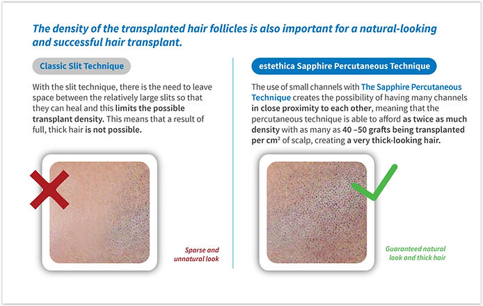 Shappire Hair Transplant Turkey step 5