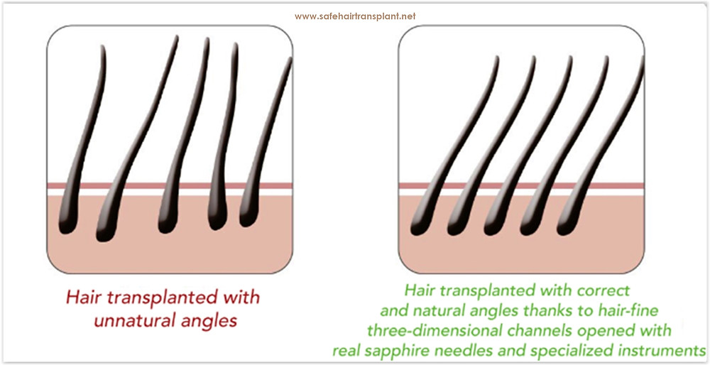 Hair transplant prices in Turkey for Irish people