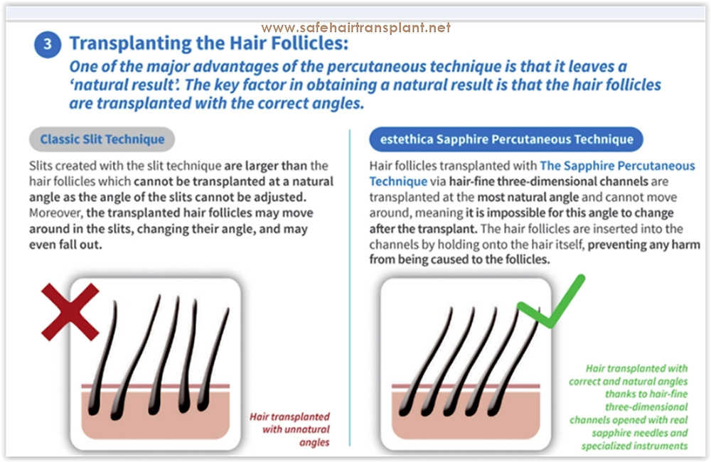 How much does hair transplant cost in Turkey?