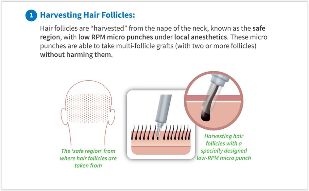 Safe Hair Transplant in Turkey
