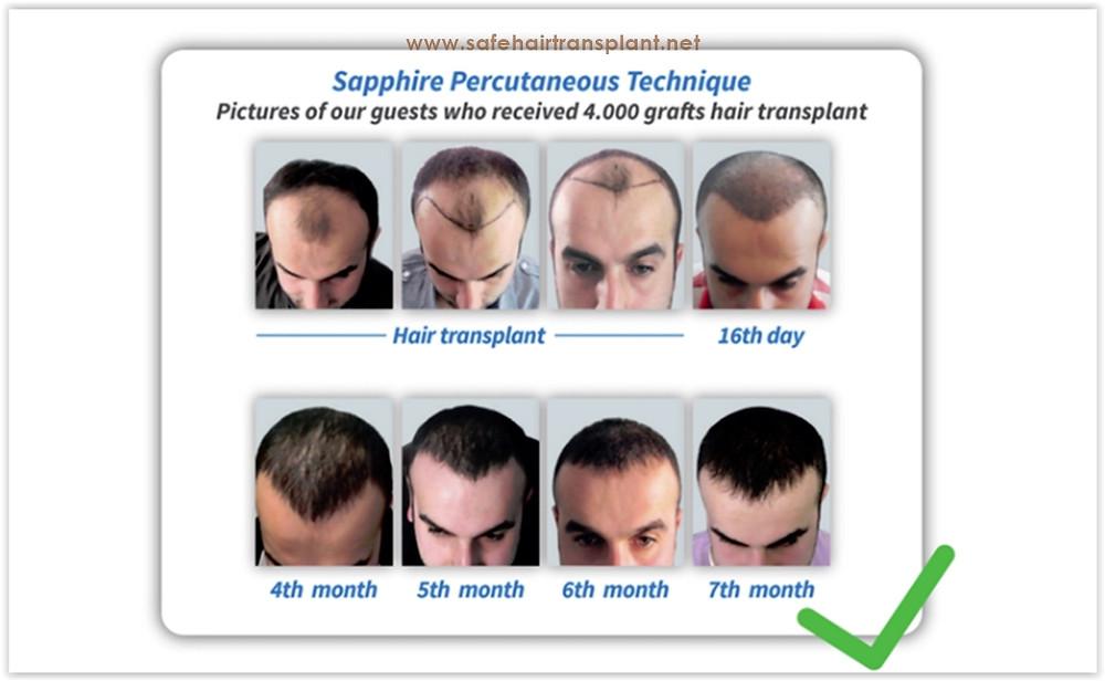 كم يكلف زرع الشعر في تركيا؟