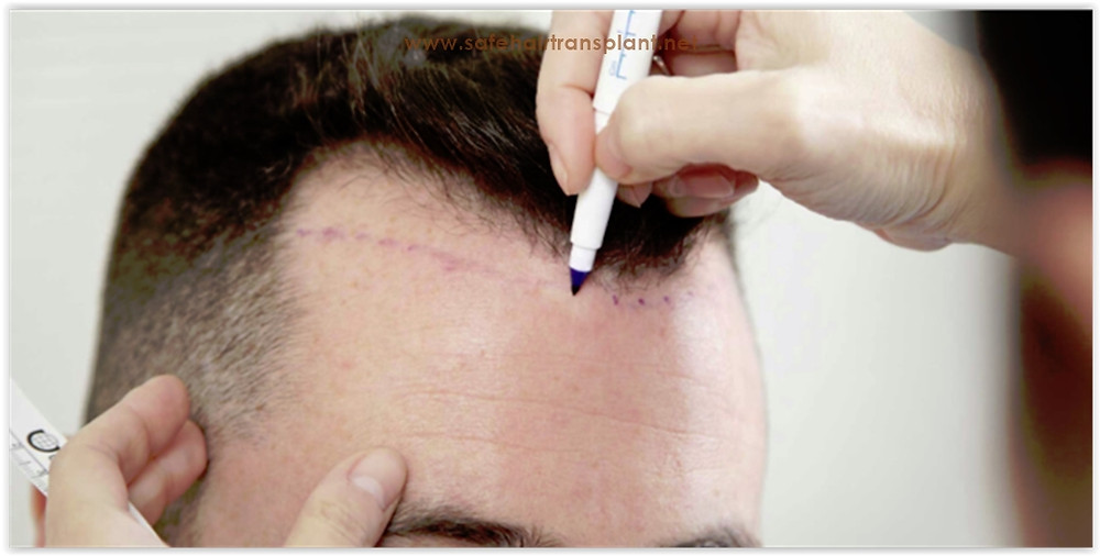 Best hair transplant clinic in Turkey 2019