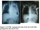 Diaphragm forthcoming-2 figure 3.jpg