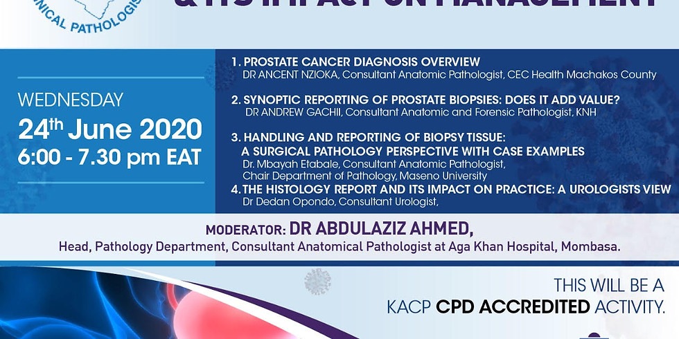 PROSTATE CANCER DIAGNOSIS AND IT'S IMPACT ON MANAGEMENT