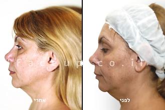מתיחת פנים טבעית - קו הלסת