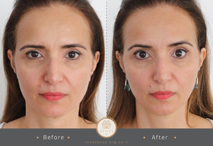 double before after pic2-06.jpg