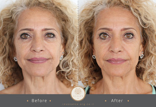 double before after pic2-12.jpg