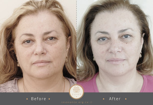 double before after pic2-19.jpg