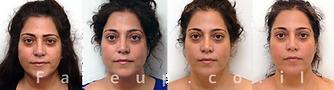 הרמת פנים טבעית  -ללא ניתוח