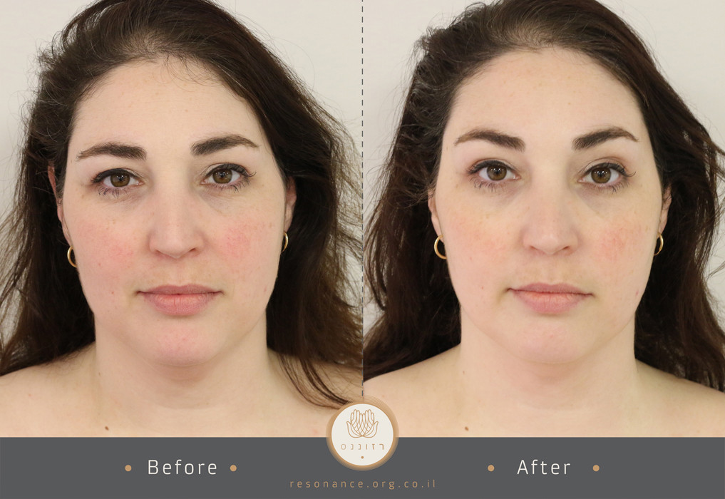 double before after pic2-9.jpg