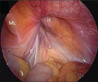 ZOOM CLASS - Laparoscopic Hernia Repair