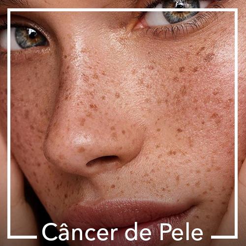Cancer de Pele.jpg