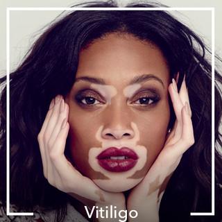 Vitiligo.jpg