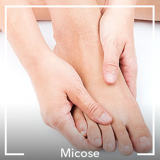 Micose.jpg