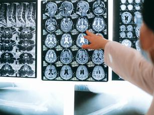 3 Drinks for Better Brain Health...