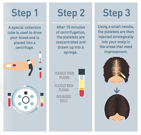 prp-hair-diagram-2.jpg