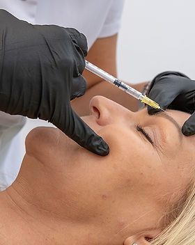 Anti-wrinkle injectables Essex.jpg