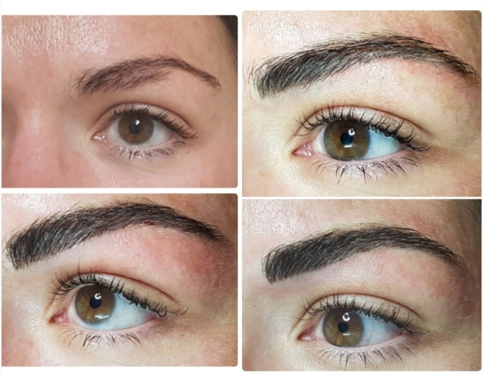 Brow Definition