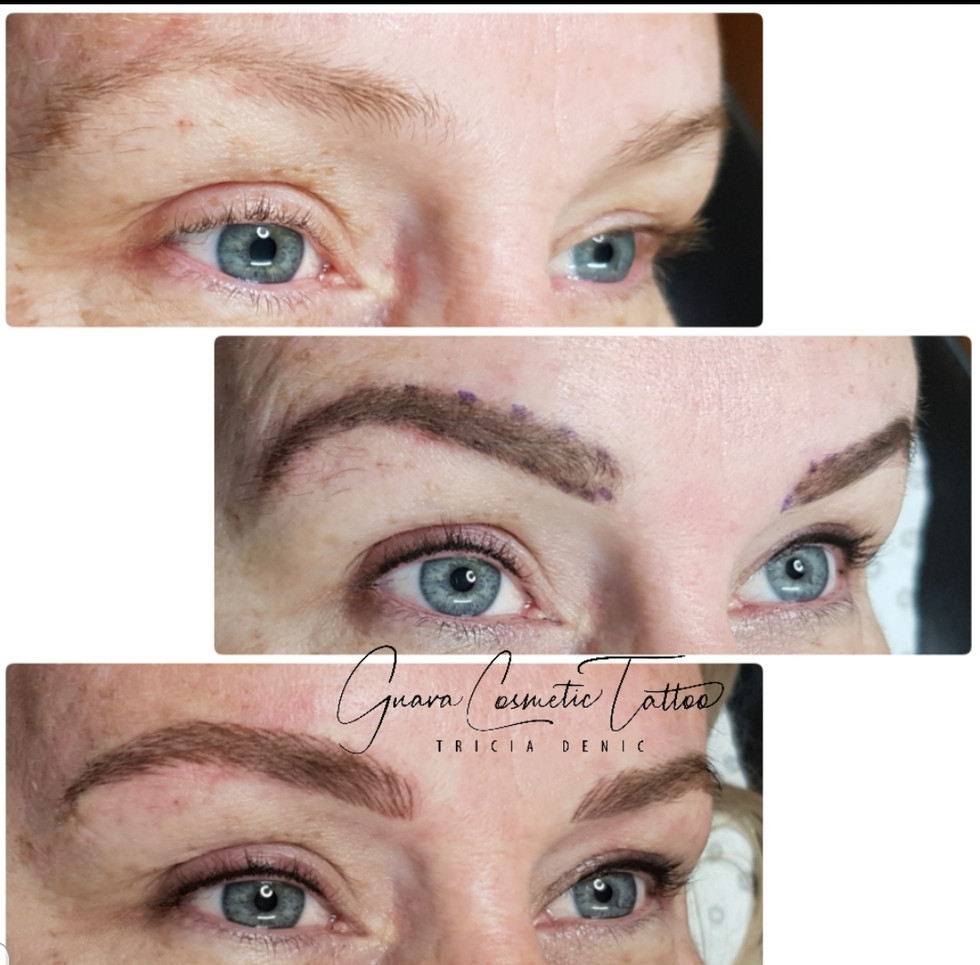 Feathered Brow Process