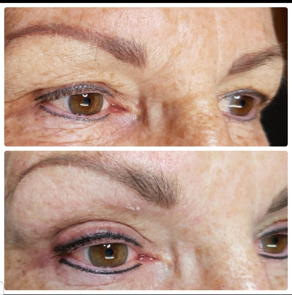 Healed Upper/Lower Eyeline