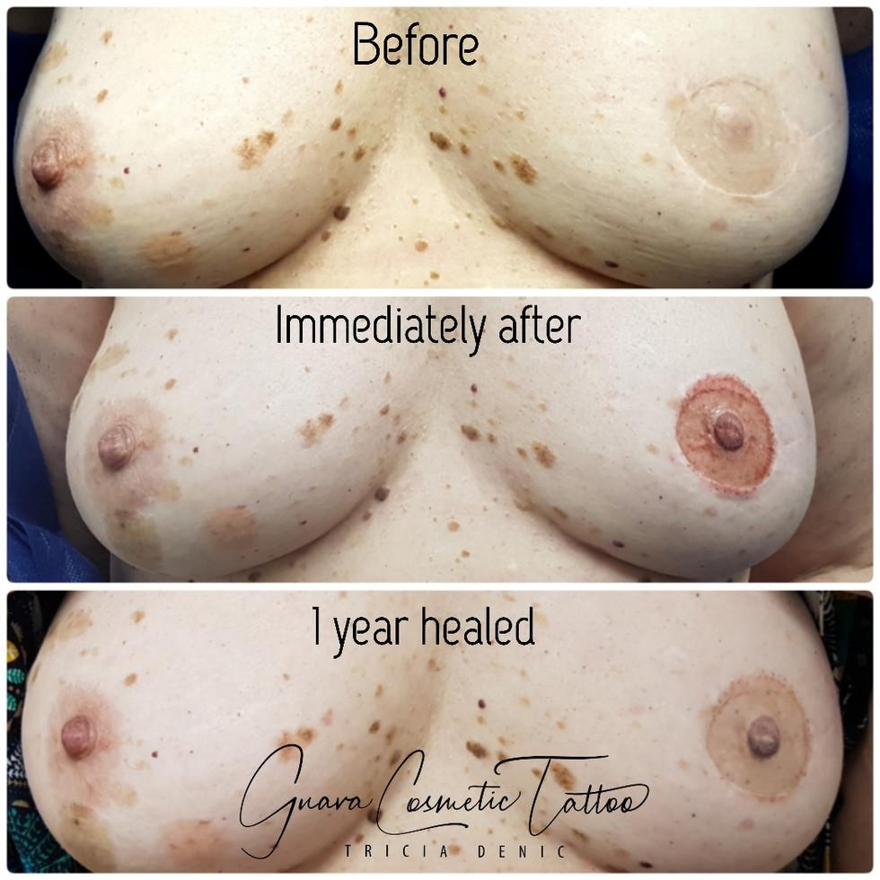 Healed Left Areola/Nipple