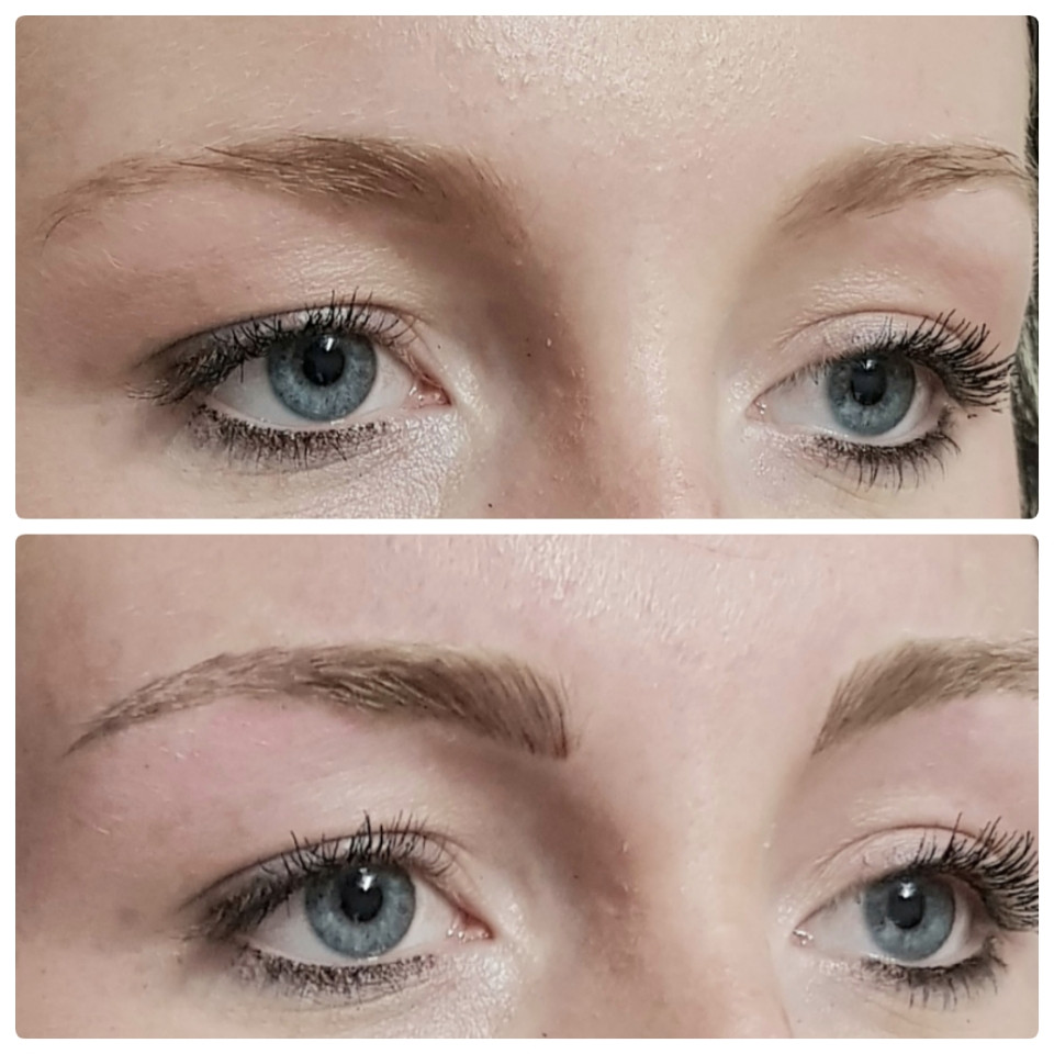 Before & After Perfection Treatment