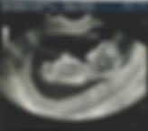 Беременность УЗИ, КТГ