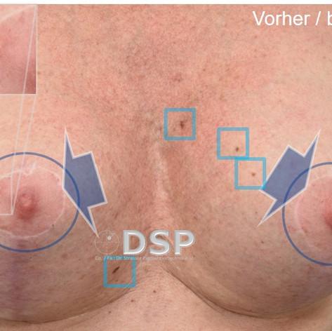 SOH HP DSP VN 0015B-01 vorher 4. BH.jpg