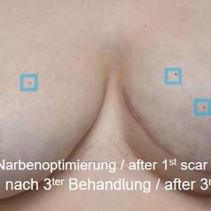 SOH HP DSP VN 0023-02 nachher 3. BH.jpg