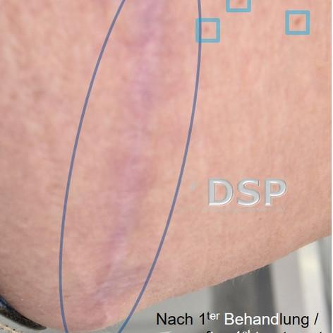 SOH HP DSP VN 0012-02 nachher 1. BH.jpg