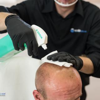Abreinigung mittels Hautdesinfektion
