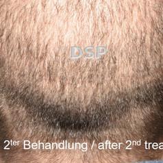 SOH HP DSP VN 0001-02 nachher 2. BH.jpg