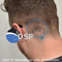 SOH HP DSP VN 0002-02 nachher 3. BH.jpg