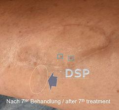 DSP HP-paME VN 0015-02.jpg