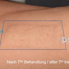 SOH HP DSP VN 0009-02 nachher 7. BH.jpg