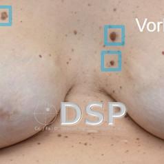 SOH HP DSP VN 0017-01 vorher 3. BH.jpg