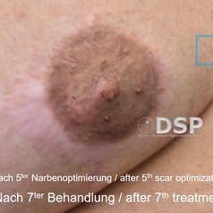 SOH HP DSP VN 0005-02B nachher 1. BH.jpg