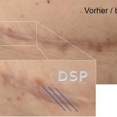 SOH HP DSP VN 0014-01 vorher 2. BH.jpg