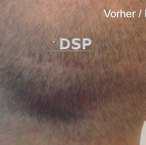 SOH HP DSP VN 0001-01 vorher 2. BH.jpg