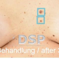 SOH HP DSP VN 0017-02 nachher 3. BH.jpg