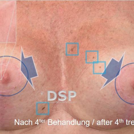SOH HP DSP VN 0015B-02 nachher 4. BH.jpg