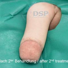 SOH HP DSP VN 0018-02 nachher 2. BH.jpg