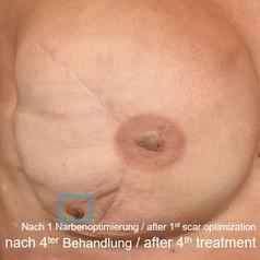 SOH HP DSP VN 0024-02 nachher 4. BH.jpg