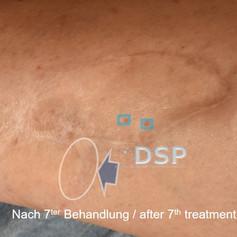 SOH HP DSP VN 0010-02 nachher 7. BH.jpg