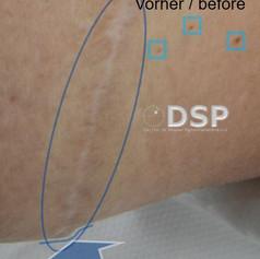 SOH HP DSP VN 0012-01 vorher 1. BH.jpg