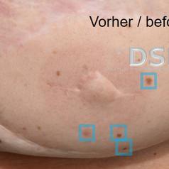 SOH HP DSP VN 0011-01 vorher 1. BH.jpg