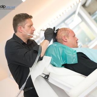 Applikation der Scalp Optic Hair® Methode auf der vorgezeichneten, vorab bestimmten, Gesamtfläche