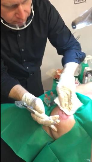 Applikation einer Areola Pigmentierug